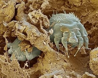 Milben_itch_mite_photo_parasite